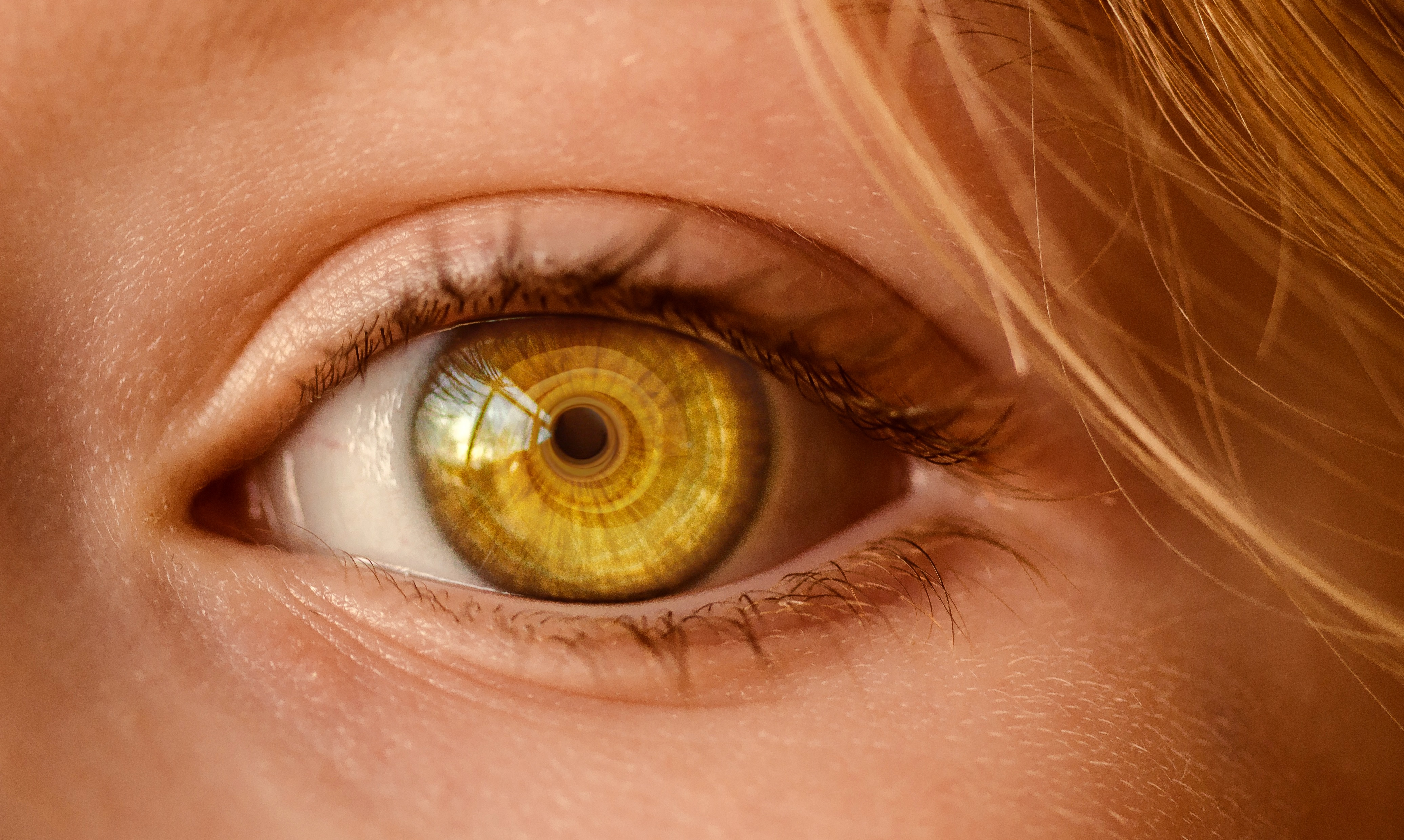 ojos-ponen-amarillos