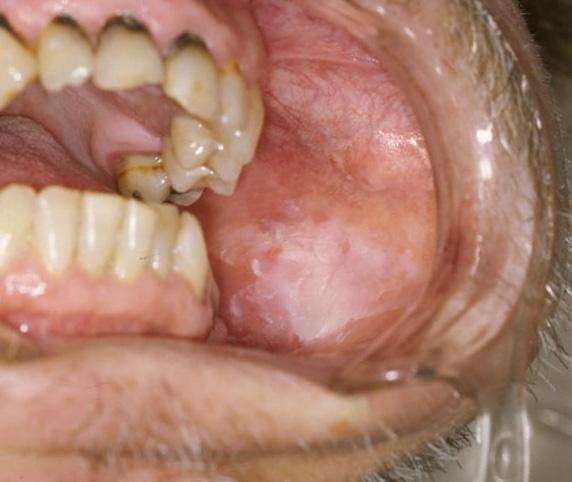 enfermedades-lengua-desconocias
