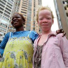 Datos curiosos sobre los albinos