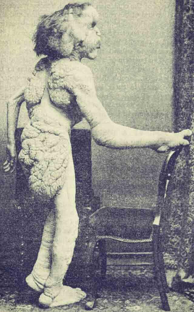 Hombre Elefante