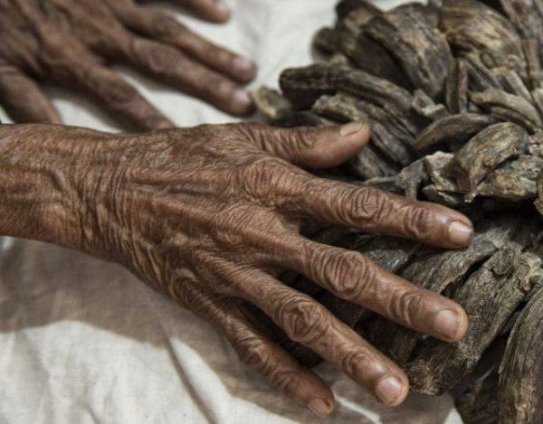 enfermedad enfermedad del hombre árbol