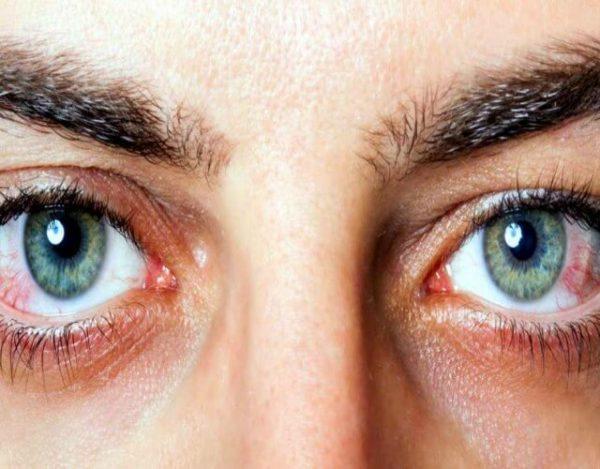 por qué se ponen los ojos rojos