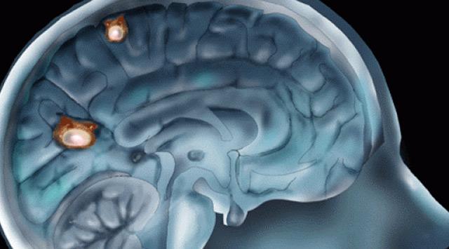 ¿Tenemos parásitos en el cerebro?