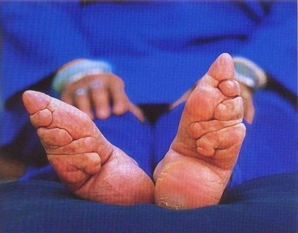 El doloroso proceso chino de los pies de loto