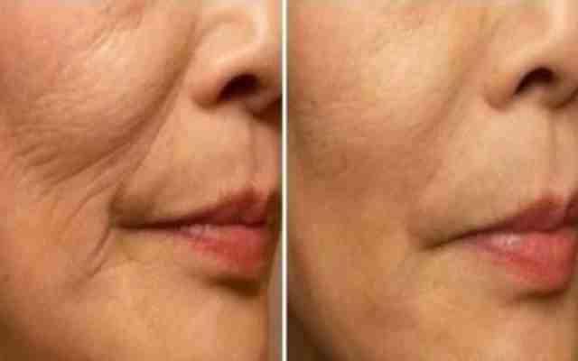 11 formas de quitar las arrugas de tu rostro y boca con éxito total