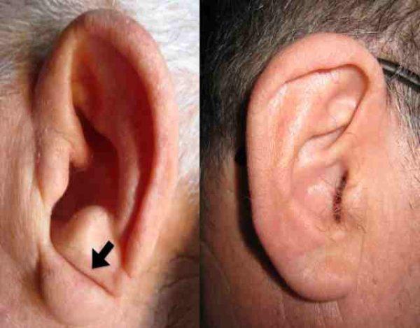 Tienes el lóbulo de la oreja pegado o colgando