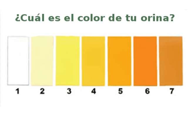 Médicos Advierten Para Que Estés Atenta – El Color De La Orina Indica Esto En Tu Cuerpo ¡Importante!